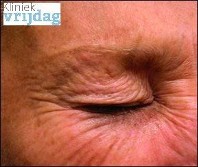 Kraaienpootjes behandeling met Botox, lachrimpels verwijderen vrouw foto na botox behandeling