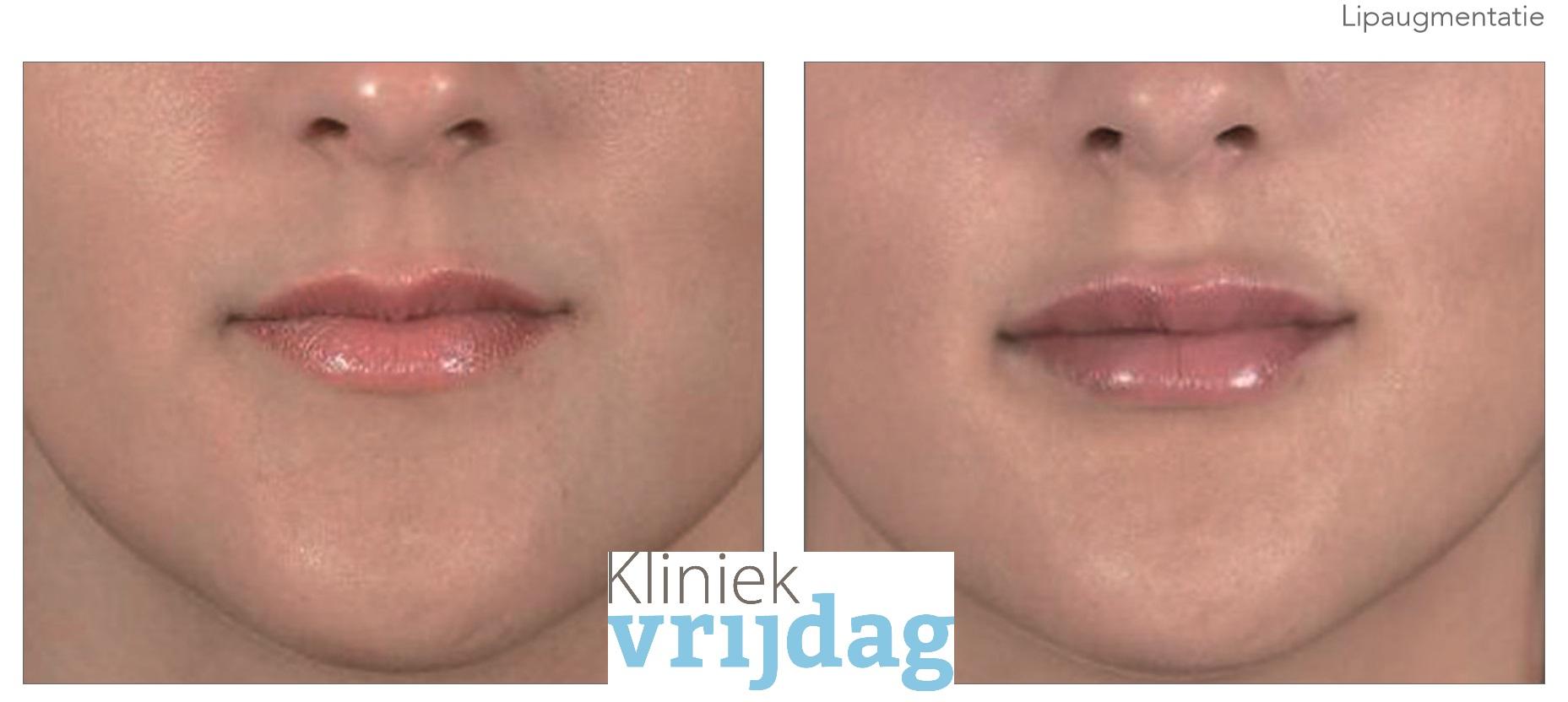 Lipfillers behandeling Noordwijk