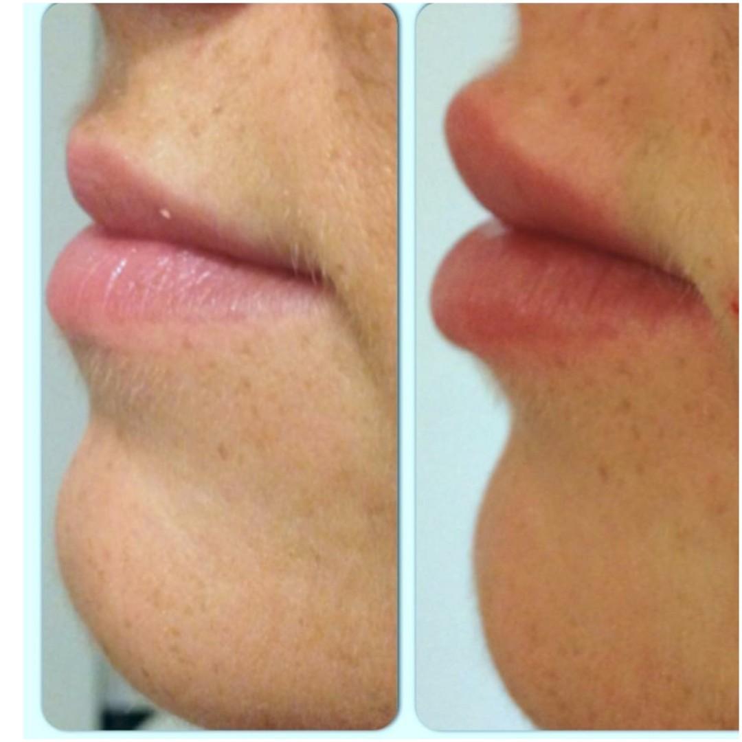 lippen vergroten