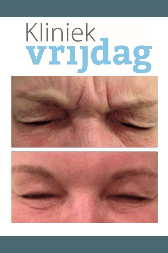 Rimpels, Botox behandeling voor en na foto, fronsrimpel, bocouture, azzalure, Xeomin, rimpel behandeling