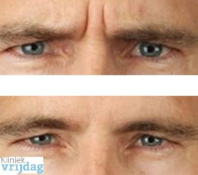 Botox behandeling man voor en na foto fronsrimpel behandeling botox aanbieding botox kosten