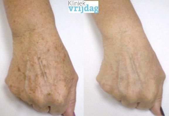 Oude handen behandeling voor en na foto