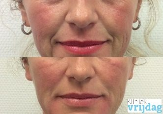 fillers neusplooi, hangende mondhoeken Kliniek vrijdag voor en na foto, filler behandeling, injectables behandeling Leiden