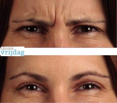 Botox behandeling voor en na foto fronsrimpel botox aanbieding botox kosten