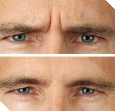Botox behandeling man, mannen fronsrimpel behandelen botuline toxine, voorhoofd behandelen botox, botox voor mannen