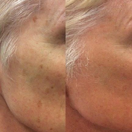 Huidverjonging, pigmentvlek verwijderen, huidverbetering, pigment behandelen, pigmentvlek laser, pigmentvlekken laseren