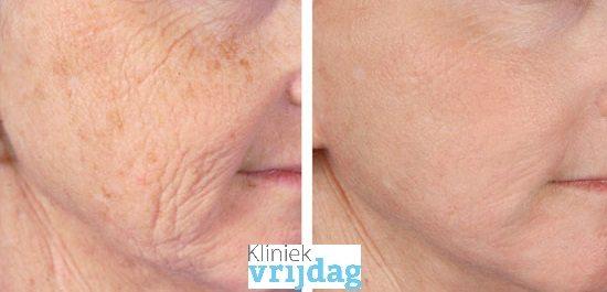 huidverjonging, rimpels, huidverbetering, huidkliniek, pixel, fractional laser, laserbehandeling, erbium, huidvernieuwing, pigmentvlek verwijderen, leiden, den haag, voorschoten, oegstgeest