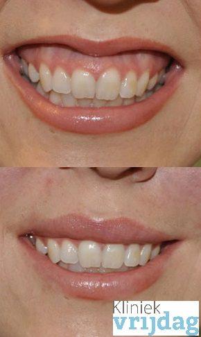 Tandvleeslach behandeling, botox tegen tandvlees lach, gummy smile behandeling