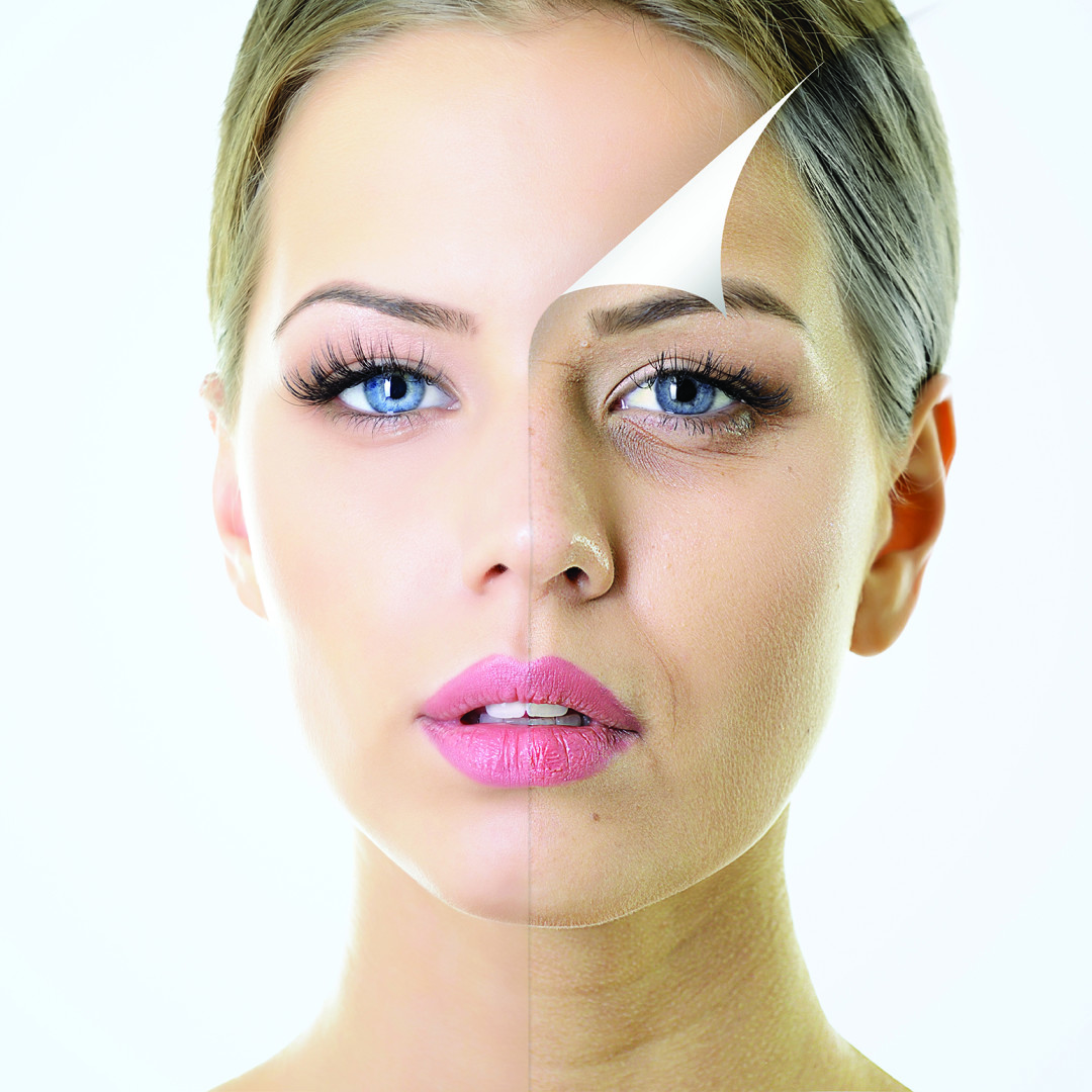 Huidverjonging gezicht, fractional laser, peeling