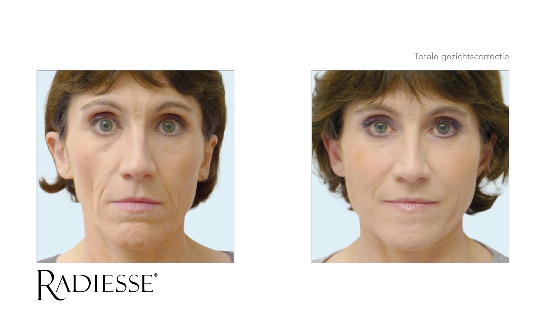 Ingevallen gezicht behandelen met fillers, volume jukbeenderen, Radiesse behandeling ingevallen wangen