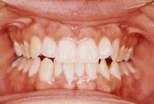 Tandenknarsen behandelen met Botox, Bruxisme behandeling