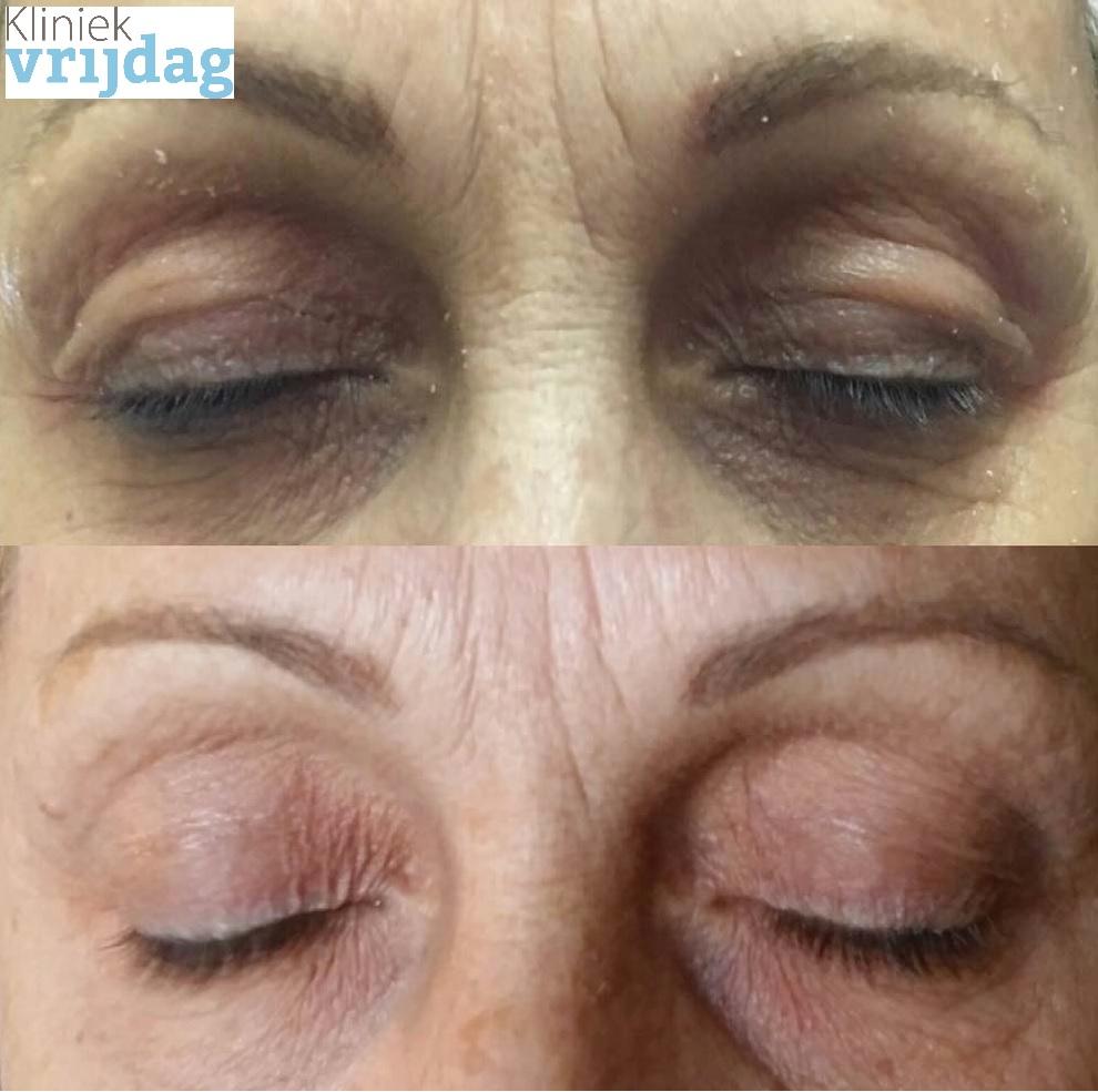 Plasma behandeling den haag ooglid verstrakking