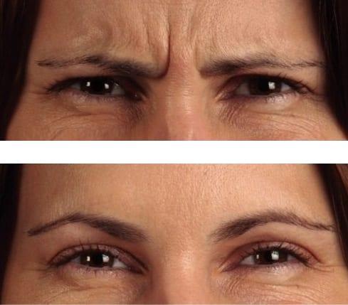 Fronsrimpel behandeling vrouw