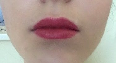 Marijke lippen na behandeling