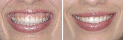 Gummilach en botox