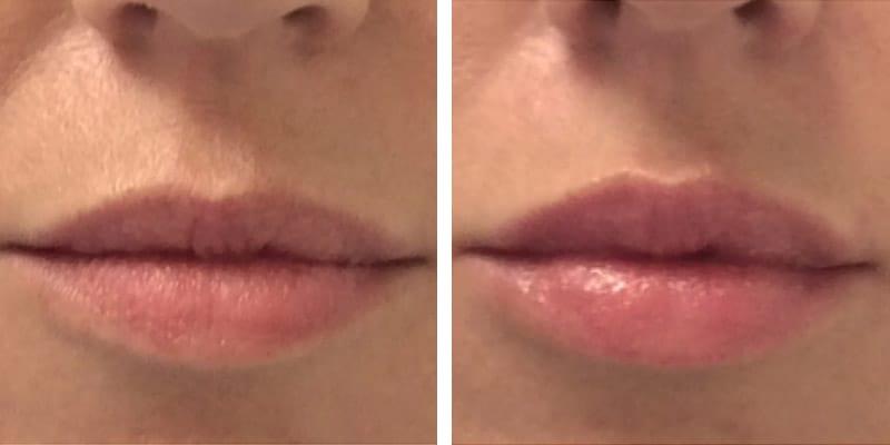Natuurlijke botox lippen